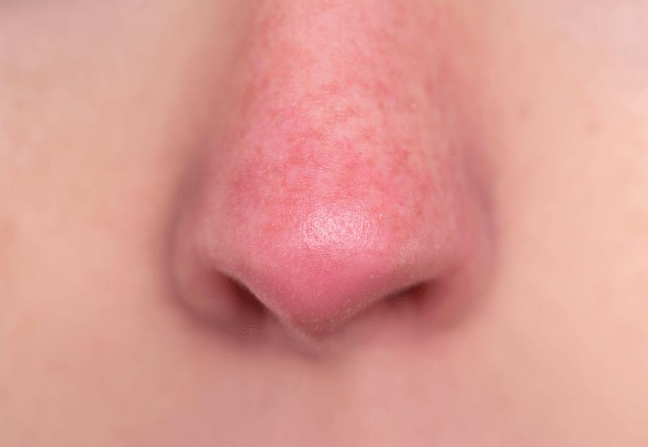 毛細血管拡張症タイプの赤ら顔