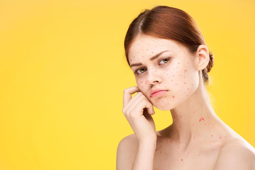 脂漏性皮膚炎タイプの赤ら顔