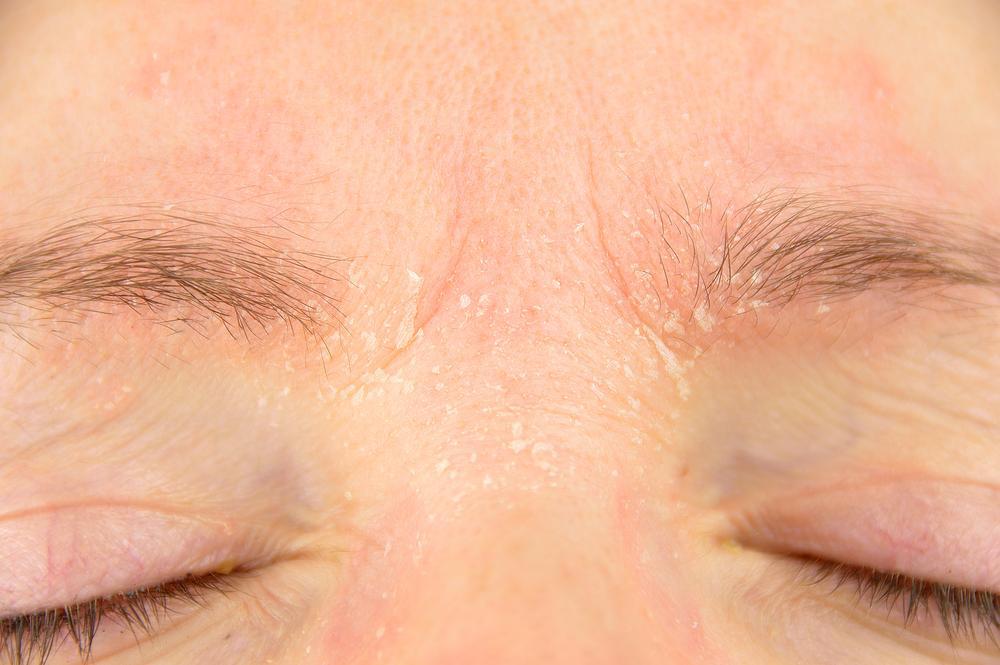 アトピー性皮膚炎タイプの赤ら顔