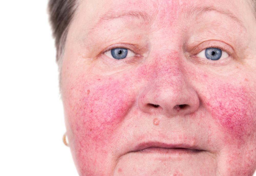 酒さタイプの赤ら顔